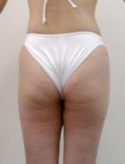 synliga blodådror på benen
